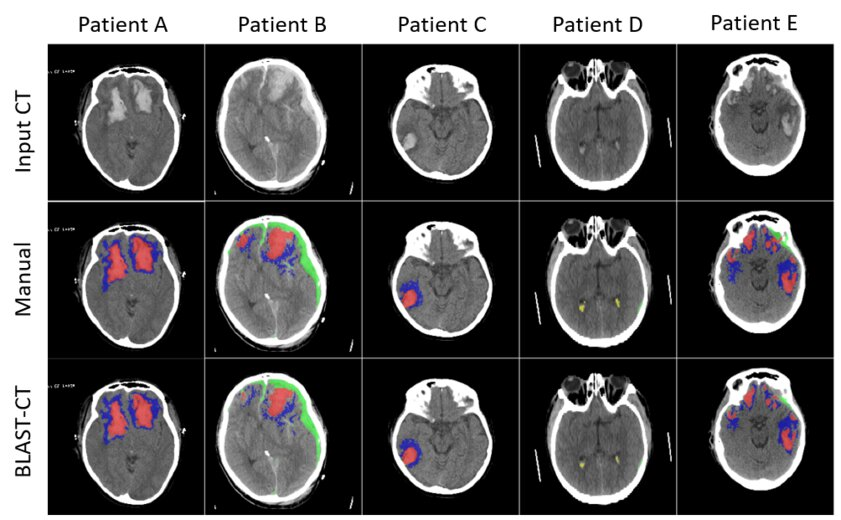 Нейросеть длятравматолога: ИИ автоматически распознает черепно-мозговые травмы