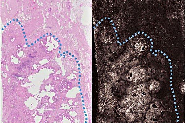 Новый метод томографии полностью выявляет рак