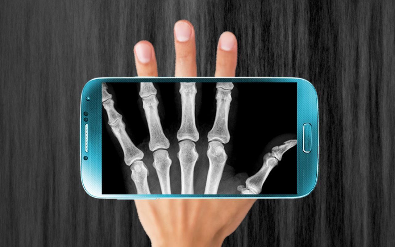 Скачать на телефон приложение рентген
